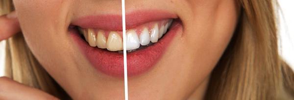 Wybielanie zębów w domu – profesjonalne paski
